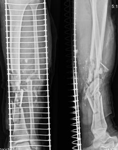Comminuted and open fracture of tibia and fibula