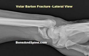 Volar Barton Fracture of Distal Radius