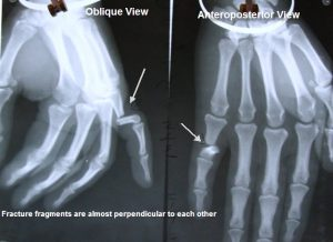 Fracture-proximal-phalanx-little-finger