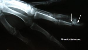 fracture-distal-phalanx-middle-phallanx