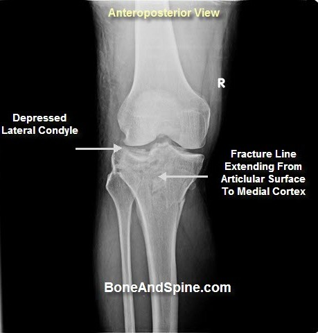 Intraarticular fractures - fracture of tibial plateau