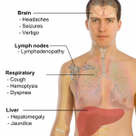 Different locations of metastasis and their symptoms