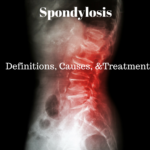 Representative Image of spondylosis