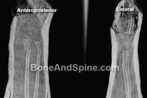 Fractures of Distal Fourth of Forearm In A child
