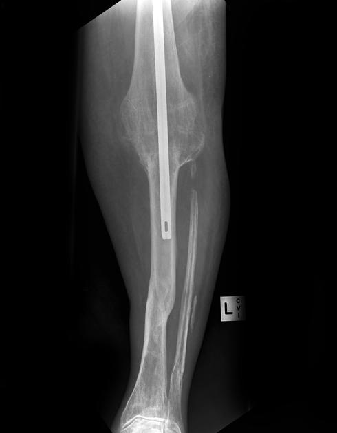 Arthrodesis Knee with KNail
