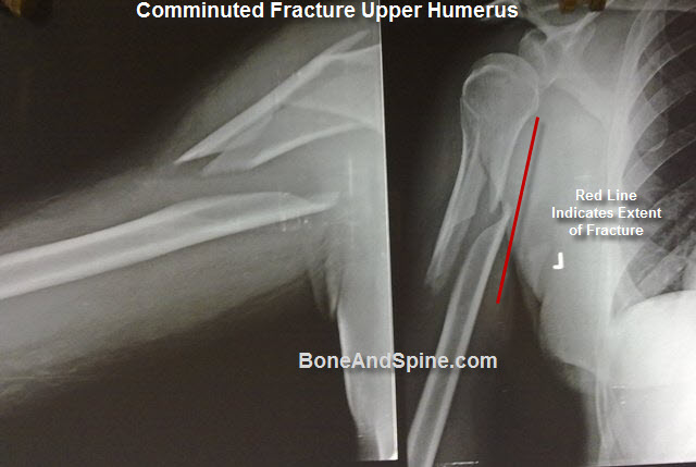 xrays of fracture of humerus | bone and spine, Human Body