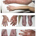 erythromelalgia images