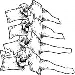 Flexion Type Teardrop Fracture of Cervical Spine