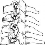 Lower Cervical Spine Injury