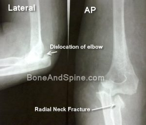 fracture dislocation elbow