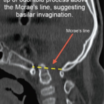CT scan of craniovertebral junction showing basilar invagination