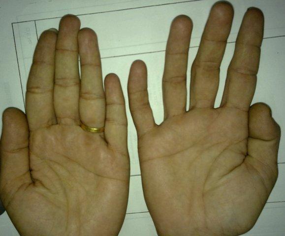 Ulnar Claw Hand Deformity