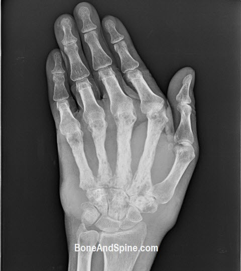 fungal osteomyelitis
