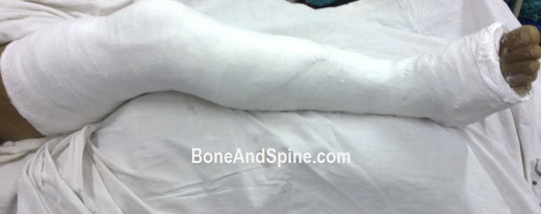 An Above knee cast in patient of fracture tibia