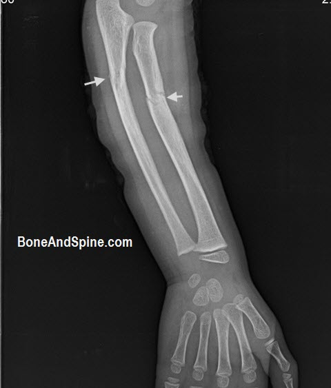 Minimally Displaced Fracture of radius With Greenstick Fracture of Ulna