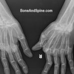 bilateral wrist xrays