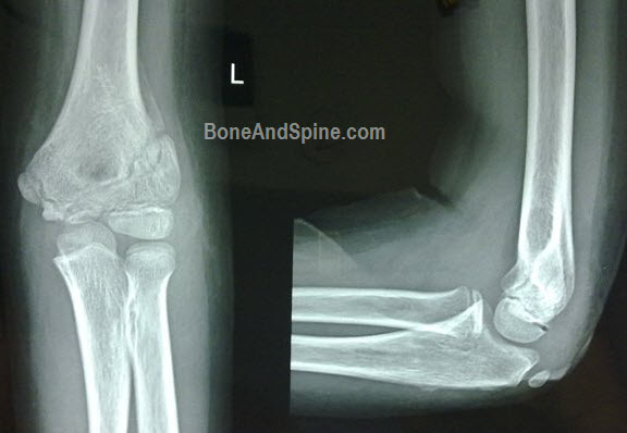 lateral condyle fracture - photo #45