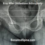 xray after Girdlestone arthroplasty