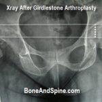 xray after Girdlestone arthroplasty