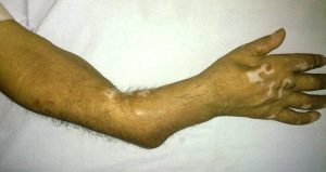 Non union in forearm bones