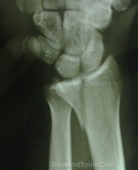 stress fracture Tibia and Fibula fracture tibia fibula is Fractures -boneandspine.com