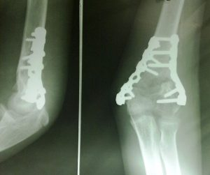 AP and Lateral Xray of operated-supracondylar-fracture-humerus with reconstruction plate