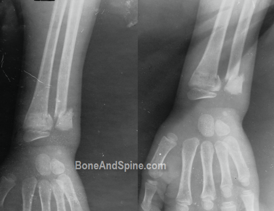 distal end of radius and ulna in a child