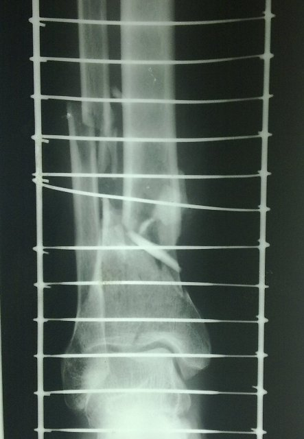 fracture-tibia-distal-third-comminuted-ap