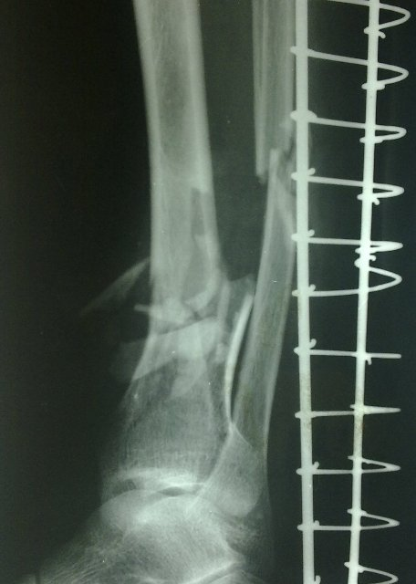 Lateral View of Comminuted Fracture of Distal Tibia and fracture fibula