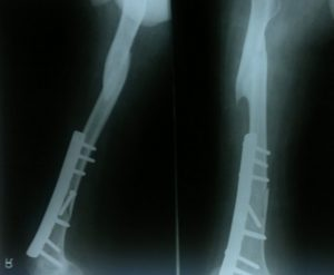 Xray of patient with fracture shaft femur in poliotic limb