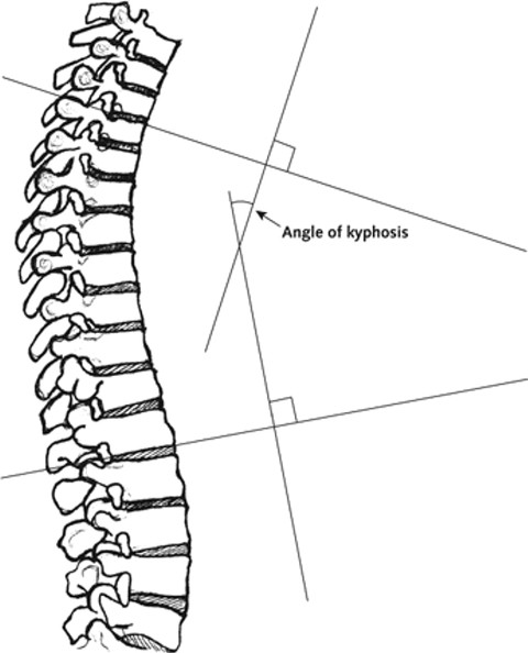 Cobb's Angle In Kyphosis