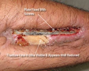 Exposed Implant In Ulna