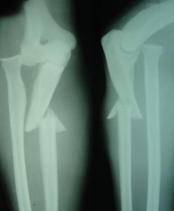 Type I Monteggia Fracture Dislocation