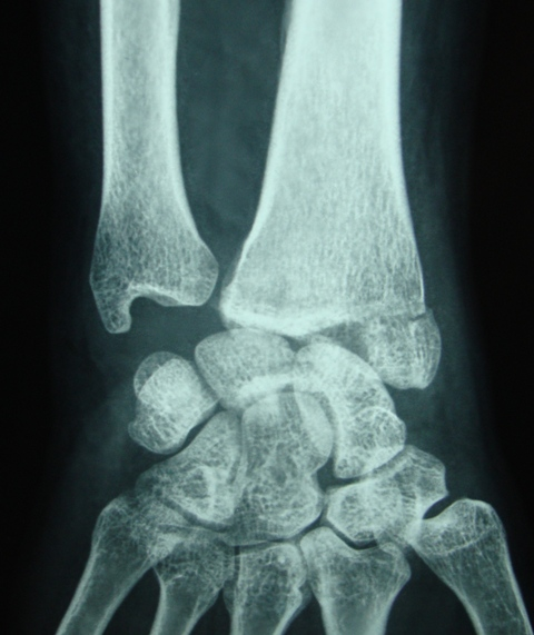 Fracture of Radial Styloid