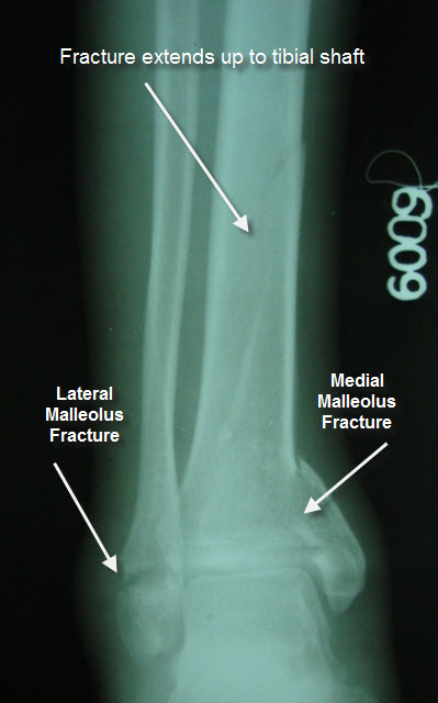 trimalleolar fracture with tibial extension