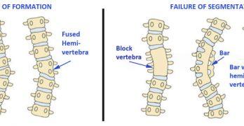 conenital-scoliosis