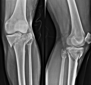 Fracture Upper End Tibia With Fracture Fibular Neck