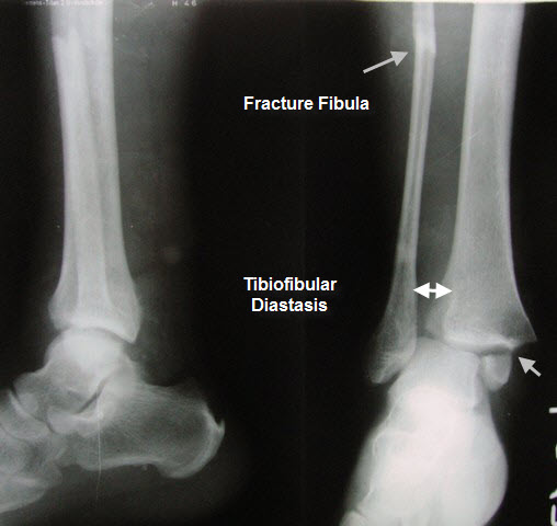Bimalleolar Fracture With Ankle Subluxation With Tibifibular Diastasis