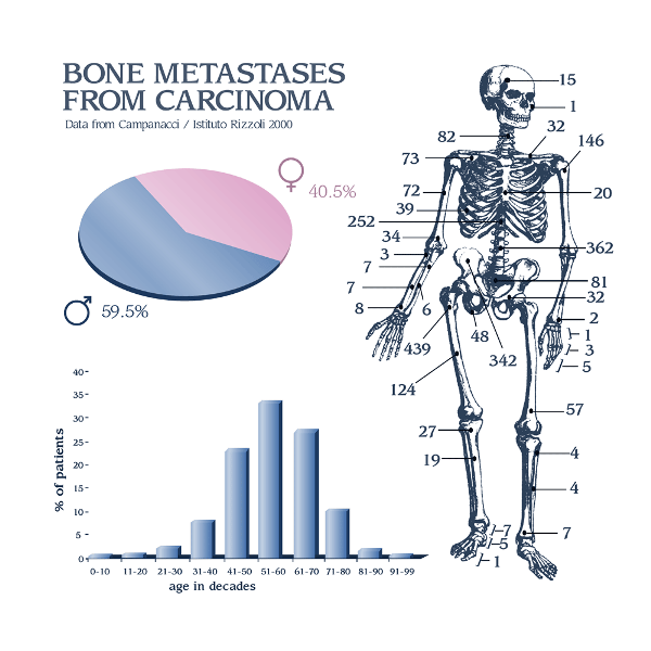 Spread of Bone Metastases