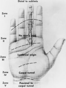 flexor tendon zones hand