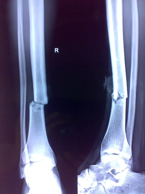 Transverse Fracture of Tibia In Lower Third of Tibia