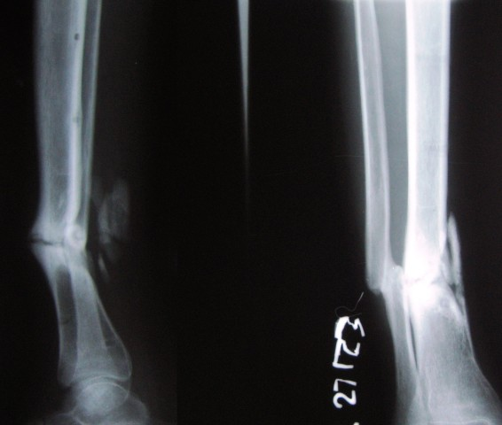 X-ray of fractre Tibia and Fibula Fibula malunited and tibia ununited