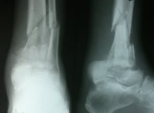 Fracture of Talus and Lower End Tibia