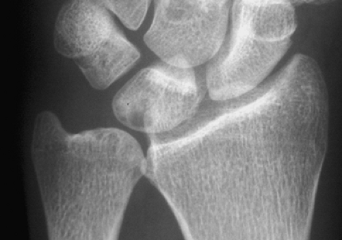 Cyst formation in lunate following Ulnar Impaction Syndrome