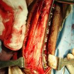 Internal fixation of Distal TIbia Plate In Fractures of Distal Tibia
