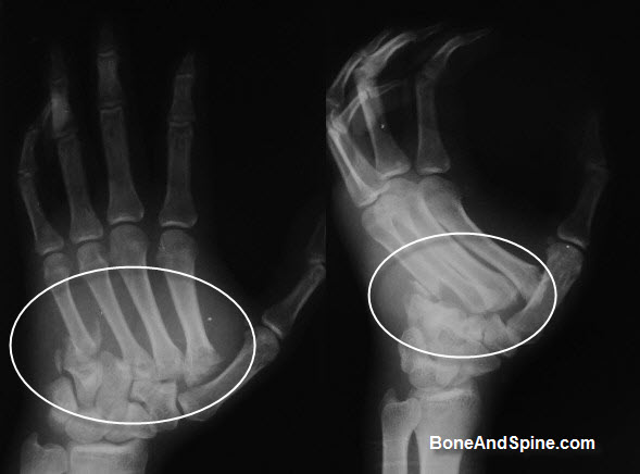 Fracture and dislocation of metacarpal bases