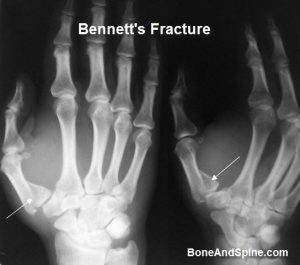 Intra-articular Fracture of First Metacarpal Base With Subluxation Of First Metacarpophalangeal Joint or Bennett fracture