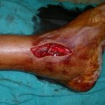 Lacerated Wound On Ankle