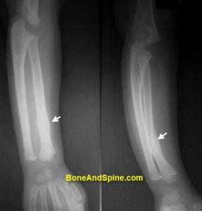 Fracture of Radius Bone In A Child