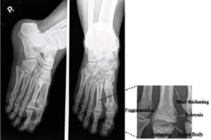 freiberg disease is osteochondrosis of second metatarsal head